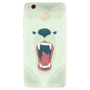 Odolné silikonové pouzdro iSaprio - Angry Bear na mobil Xiaomi Redmi 4X