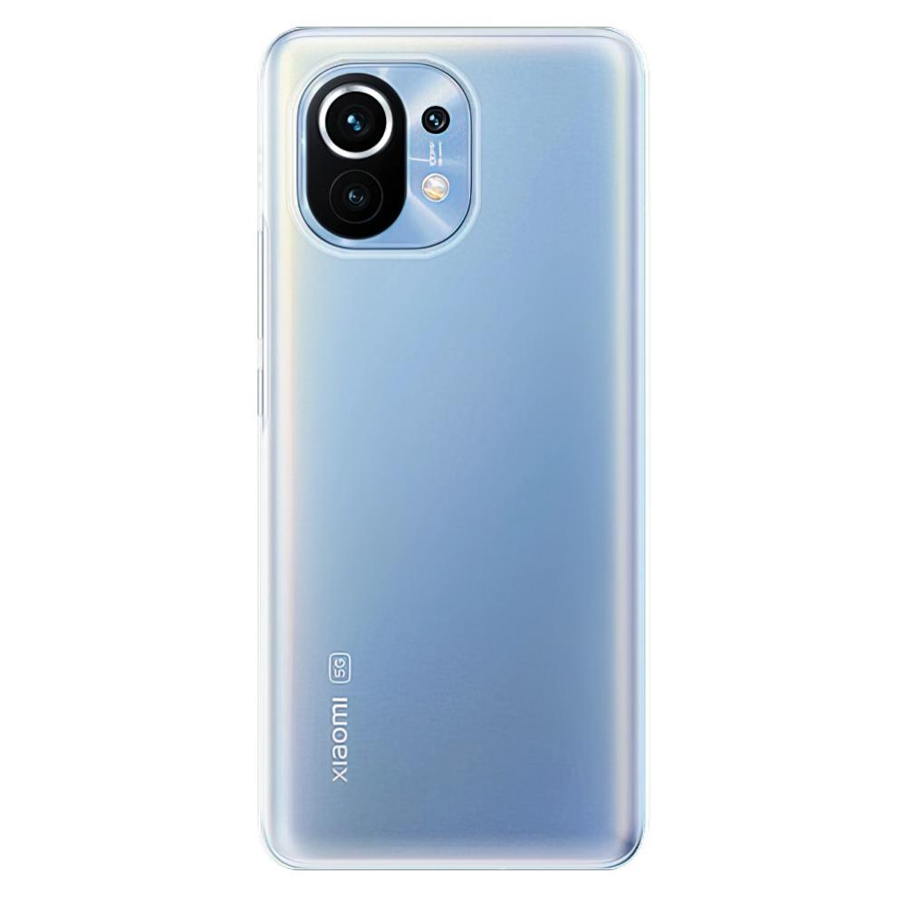 Silikonové pouzdro iSaprio s vlastním motivem na mobil Xiaomi Mi 11